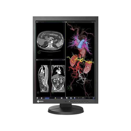 Eizo RadiForce MX215