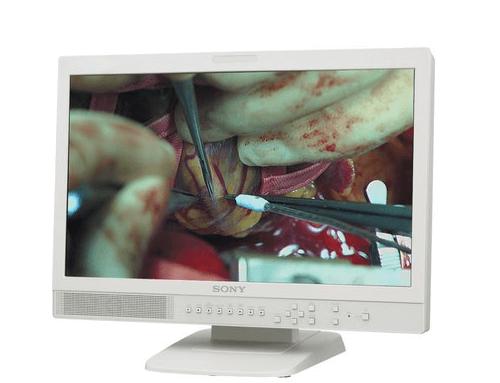 Sony LMD2110MD Medical LCD Monitor